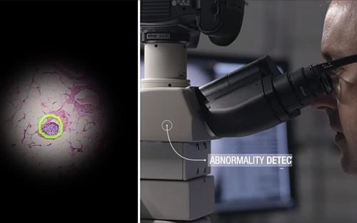 AIが光学顕微鏡の映像から癌を検出